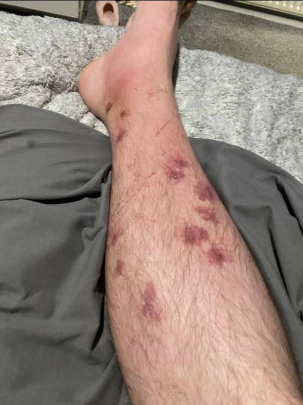 Εγκαύματα στο πόδι